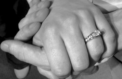 Znojne ruke znak su stresa