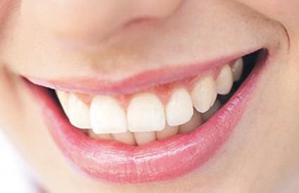 Želite li besprijekoran osmjeh, njegujte svoje zube