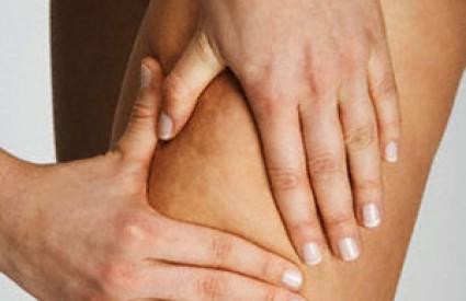 Celulit je glavni neprijatelj ženskih nogu