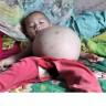 Djevojčica stara godinu dana u trbuhu nosi fetus