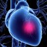 Europi prijeti 'epidemija' srčanih udara