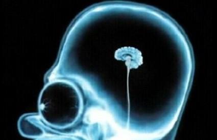 Vježbajte mozak, inače ...