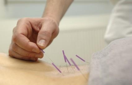 Akupunktura je stvarno učinkovita
