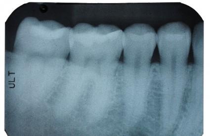 Rendgen zuba