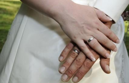 Stalno nošenje nakita, poput prstenja, može biti opasno