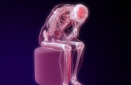 kostur tijelo