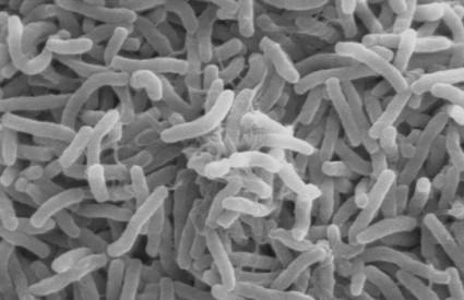 Vibrio cholerae - uzročnik kolere