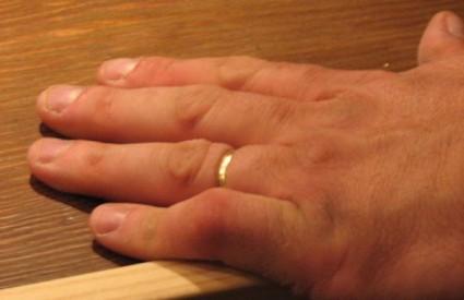 Prsten ima magnetsku privlačnost