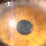 Genska terapija spašava od sljepila?