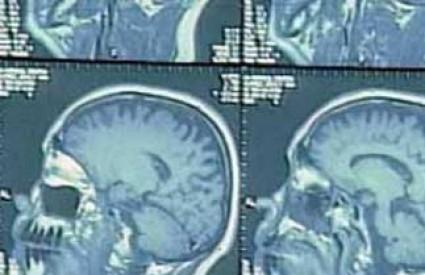 Snimka glave magnetskom rezonancom