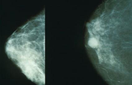 Lijevo - zdrava dojka, desno - rak dojke