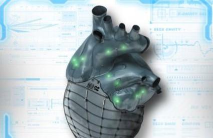 Umjetno srce