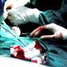 Prva transplantacija srca - 50 godina od čuda