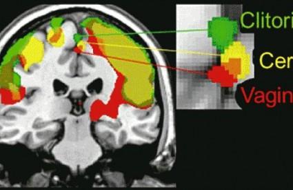 Što sve radi ženski mozak