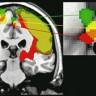 Fascinantne razlike između ženskog i muškog mozga
