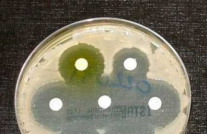 Superbakterije su izuzetno opasne