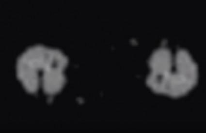 Što je to snimila posada misije Apollo 11