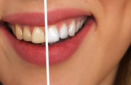 Zašto ne bi imali bijele zube